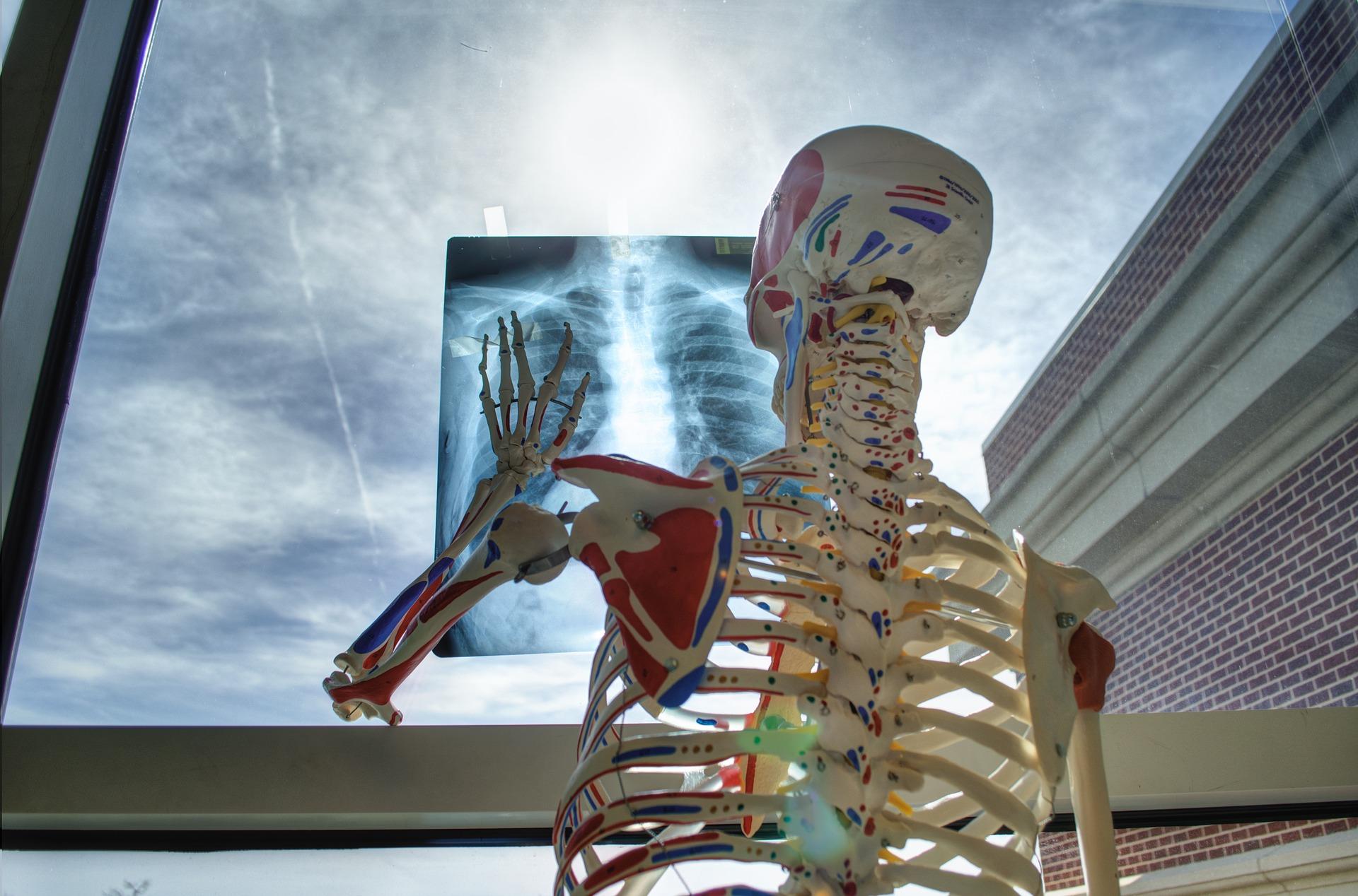 La clé pour prévenir les troubles musculo-squelettiques des kinésithérapeutes et ostéopathes